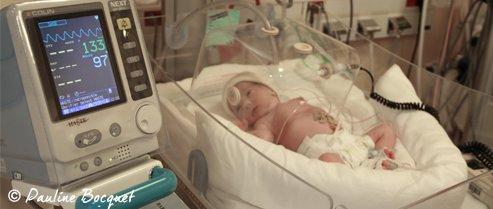Néonatalogie bébé
